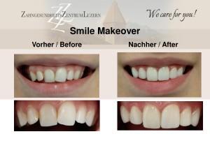 Zahnarzt Luzern Veneers